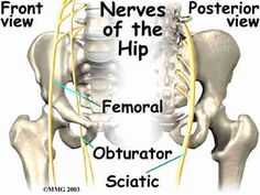 Pinched Nerve in hip or also termed as compressed or trapped nerve in hip - Learn the causes, symptoms & treatment using these 9 simple tips.