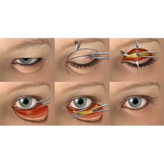Upper and Lower Blepharoplasty (eyelid surgery)