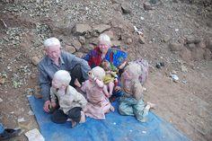 The Albino Family of Haji Malang