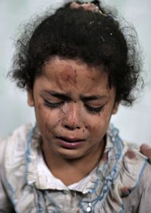 Najia Warshagha was treated for injuries caused by an Israeli strike at a UN school in Jebaliya refugee camp,   in Beit Lahiya, Gaza. Photog...