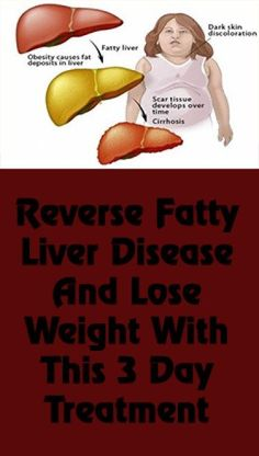 Reverse Fatty Liver Disease And Lose Weight With This 3