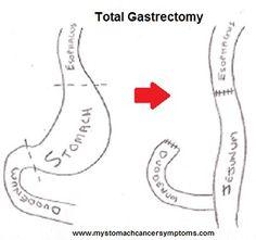 Stomach Cancer Surgery- Procedure Options