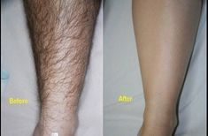 how to remove unwanted hair permanently at home naturally Underarm Hair Removal, Hair Removal Diy, At Home Hair Removal, Hair Removal Cream, Skin Care Regimen, Skin Care Tips, Beauty Hacks That Actually Work, Unwanted Hair, Trends