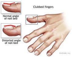 Cystic Fibrosis - Symptoms, Diagnosis, Treatment of Cystic ...