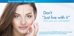 Correct Acne Scars with Bellafill® | U MediSpa