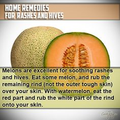 Remedies for Rashes & Hives