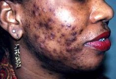 there are vious forms of cystic acne such vulgaris which is serious
