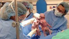 Zwillinge halten bei der Geburt Händchen