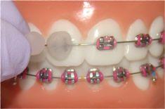 Placing orthodontic/dental wax over brackets Braces Tips, Kids Braces, Dental Braces, Teeth Braces, Palate Expander, Ceramic Braces, Cute Braces Colors, Getting Braces, Braces Pain