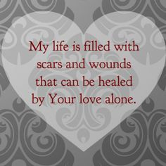 Your love sets me free, Your love is my healing balm...