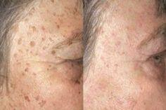 Szabadulj meg az öregedési foltoktól rövid idő alatt
