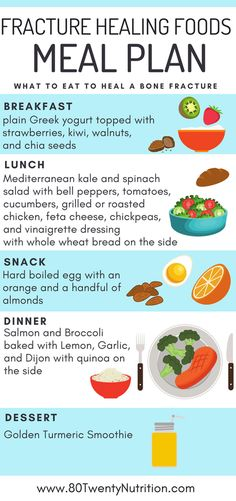 Fracture Healing Foods - Here's what to eat to heal a bone fracture quickly!