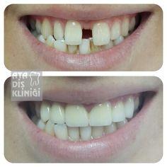 Üst çene ön bölgede 6 adet zirkonyum estetik porselen ile diastemanın kapatılması #zirkon #estetik #porselen #diastema #disacikligi #dishekimi #atasehirdishekimi #atadis #atadisklinigi #atasehir #ataşehir #dis #saglik #guzellik #esthetic #dentist #atadentalclinic #dentiste #zahnarzt #turkei #turkey #medicaltourism #dentaltourism