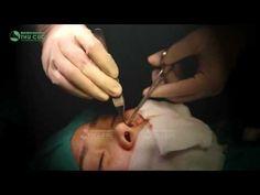 Video cận cảnh phẫu thuật nâng mũi S line tại Thẩm mỹ Thu Cúc Video, Youtube, Youtubers, Youtube Movies