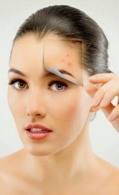 La mayoria de nosotros sabemos lo que es el acné , simplemente porque hemos tenido que vivirlo en algún momento de nuestra vida. El ac...