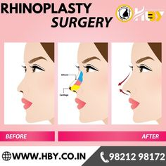 there are many types of plastic cosmetic surgery that we offers including breast augmentation, lipsuction ETC. Check out the cost or You can also book an appointment online. Brow Lift Surgery, Forehead Lift, Hair Transplant In India, Tummy Tuck Surgery, Rhinoplasty Surgery, Skin Resurfacing, Cosmetic Procedures, Liposuction, Plastic Surgery