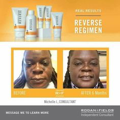 Rodan+Fields works with all skin types. This is the regimen I started with to get rid of sun damage and I love it! If you want to get rid of dullness or dark spots we definitely need to talk! You can contact me at shannonlee135@gmail.com