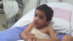 osCurve Brasil : 3 meses após cirurgia de separação, gêmeo siamês d...