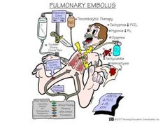 Nursing School: Medical Surgical Nursing Mnemonics - Pulmonary Embolus - I like to learn! Rn Nurse, Nurse Life, Nurse Stuff, Med Surg Nursing, Ob Nursing, Nursing Degree, Study Nursing, Nursing Career, Funny Nursing