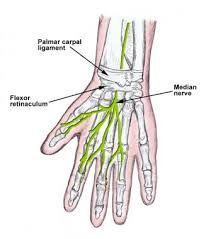 In this image, you will find palmar carpal ligament, flexor retinaculum, median nerve in it. Dog Doctor, Median Nerve, Carpal Tunnel Syndrome, Brain Training, Human Anatomy, Tattos, Paintings, Drawings, Draw