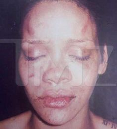 Because even Celebrity women suffer and feel affects of Domestic Violence. Speak Out! ----Picture of Rhianna