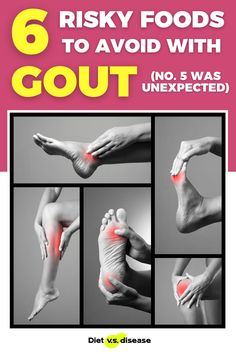 A gout attack is not pleasant. The pain is so bad that sufferers are often hospitalised for days, if not weeks. More importantly, gout is typically indicative of other more serious  health issues behind the scenes… Like a window into the state of an  individual's metabolic health. Unfortunately the occurrence, or recurrence of gout is only getting worse.