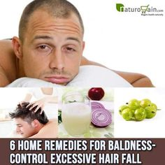 Use these wonderful #homeremedies for baldness to put a leash to excessive hair…