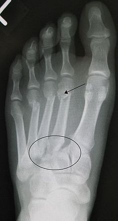 Lisfranc Injuries: Midfoot Sprains, Fractures, and Dislocations Metatarsal Fracture, Bone Fracture, Lisfranc Injury, Radiology Schools, Radiologic Technology, Ankle Pain, Medical Imaging, Radiology Imaging