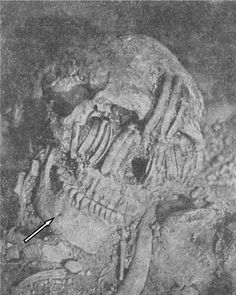 Nephilim Chronicles: Giant Human Skeletons: Early Race of Giant Neanderthal Hybrids in California