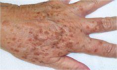 Heb je last van ouderdomsvlekken op je huid? Met deze gekke truc ben je er zo vanaf