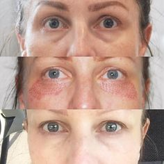 This Anti-Aging Treatment is Testing My Fear of Holes beauty treatments Chris Evans, Facial Before And After, Creepy Skin, Under Eye Fillers, Eyelid Lift, Rescue Puppies, Plasma, Skin Clinic, Dermal Fillers