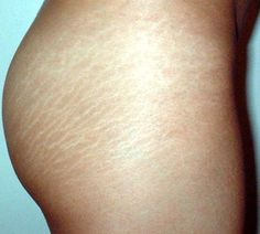 36 Best Weight Gain Stretch Marks Images Stretch Marks Weight