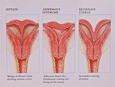 bicornuate uterus and septate uterus - Google Search