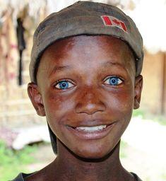 African Boy from Sierra Leone with Lovely Blue Eyes Black With Blue Eyes, People With Blue Eyes, Black People, Blue Green, Green Eyes, Black Guys, Gorgeous Eyes, Pretty Eyes, Black Is Beautiful
