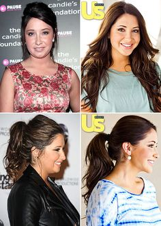 Best of 2011: Plastic Surgeries of the Year: Bristol Palin chin implant, liposuction