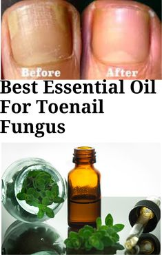Best essential oil for toenail fungus In 2019 - Healthy Nails Natural Toenail Fungus Remedy, Toe Fungus Remedies, Toenail Fungus Remedies, Treatment For Toenail Fungus, Cure For Toenail Fungus, Treating Toenail Fungus, Fungus Toenails, Essential Oil Toenail Fungus, Nail Designs