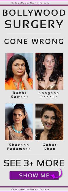 7 Bollywood Plastic Surgery Disasters Gone Wrong. Check out the pics for yourself and we'll let you decide whether they've had plastic surgery or not! Extreme Weather, Extreme Heat, Rhinoplasty Before And After, Under The Knife, Celebrity Plastic Surgery, Hail Storm, Gone Wrong, Liposuction