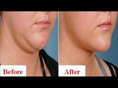 How To Get Rid Of Double Chin Permanently In 2 Months Without Surgery! 100% Effective! - YouTube