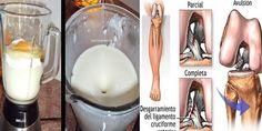 Bóle kolan i stawów mogą pojawiać się z wielu powodów. Częściej u kobiet z powodu niewłaściwego wykorzystania obuwia, jednak są też inneprzypadkiwystępują onepo prostu ze względu na starzenie się stawów i więzadeł.  Naturalne składniki mogą naprawdę