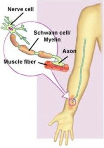 1000 Images About Cmt Charcot Marie Tooth Disease On