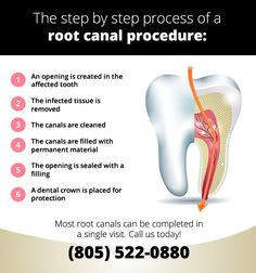 Most root canals can be completed in a single visit to our office, but some may require additional visits.    Call us to schedule an appointment if you are in need of a root canal or to learn more about root canal therapy. (805) 522-0880