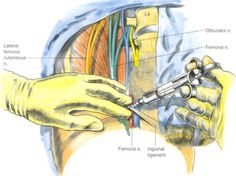 Femoral Nerve Block pin nj http://champeypaingroup.com/conditions-treatment/