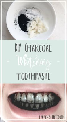 Natural Teeth Whitening Remedies - Hello readers and welcome to another Friday DIY! I'm so excited to share this amazing DIY toothpaste with you all today because teeth whitening is something I've always struggled with. Teeth Whitening Remedies, Natural Teeth Whitening, Whitening Kit, Skin Whitening, Diy Teeth Whitening Charcoal, Charcoal For Teeth Whitening, Diy Charcoal Toothpaste, Beauty Hacks For Teens, Teeth Care