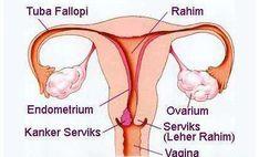Apakah kutil kelamin bisa menjadi pemicu kanker serviks? Baca selengkapnya di website kami secara langsung
