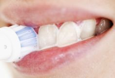 Top Oral Health Advice To Keep Your Teeth Healthy. The smile on your face is what people first notice about you, so caring for your teeth is very important. Unluckily, picking the best dental care tips migh Dental Health, Oral Health, Health Tips, Health And Wellness, Health Care, Dental Care, Baking Soda Teeth, Baking Soda Uses, Diy Beauty Treatments