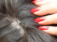 11 Simple Home Remedies For Dandruff That Worked Wonders For Me