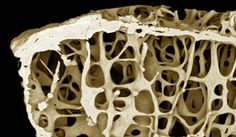 Can Fosamax and Other Osteoporosis Drugs Contribute to Bone Fractures?