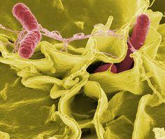 Salmonella Typhimurium Invading Cultured Human Cells