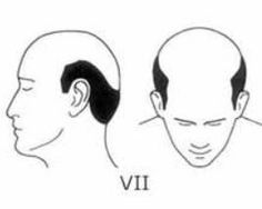 Is Hair Transplant Surgery Effective for Patients with Advanced Hair Loss?