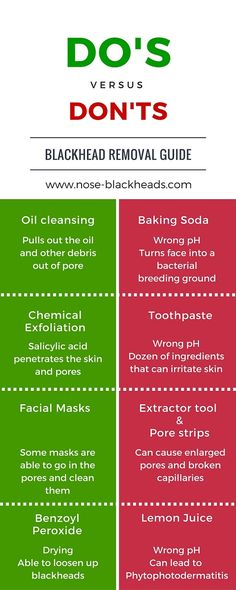 infograph on removing blackheads